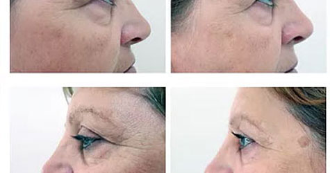 Mesotherapy Issue